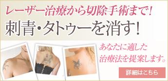 刺青タトゥー消すサイト